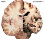Alzheimer Hastalığı Kimlerde Görülür
